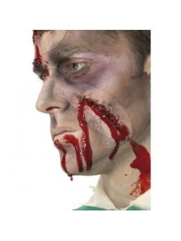 Cicatrice agrafes avec sang autoadhésive