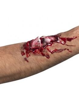 Cicatrice os brisé