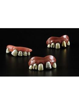 Dentiers vilain